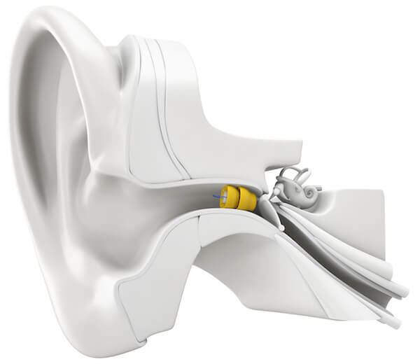 lyric hearing aids
